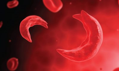 Sickle Cell Awareness Day: All You Need To Know About The Disorder